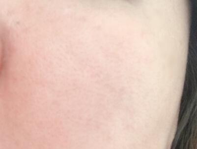 オルビスユーを使う前の肌