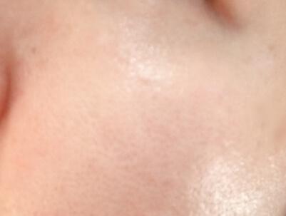 オルビスユー使用後の肌
