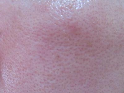 ルジョー(lujo)クリアアップファンデーションを塗る前の肌の毛穴の様子
