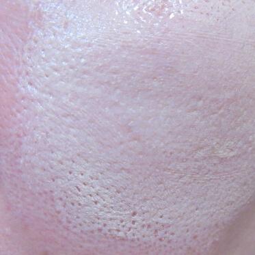 マキアレイベル薬用クリアエステヴェールファンデーションを毛穴に伸ばしてみたところ