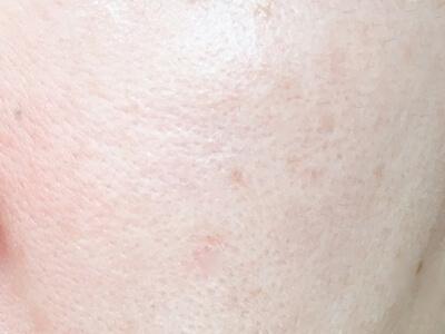 リソウクリアパウダーファンデーションをぬる前の肌