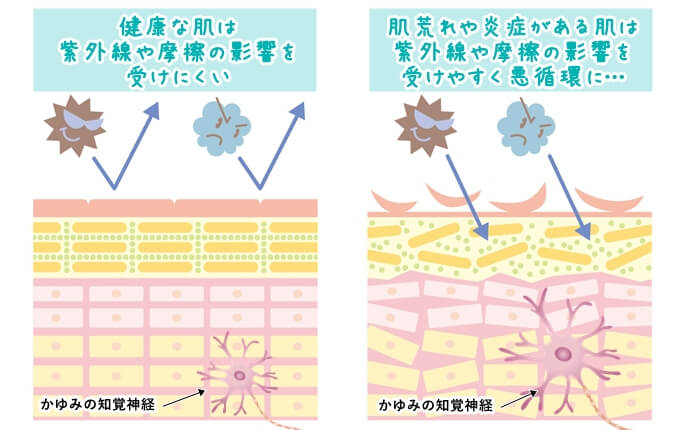 敏感肌に肌荒れや炎症が起きたときの肌断面図